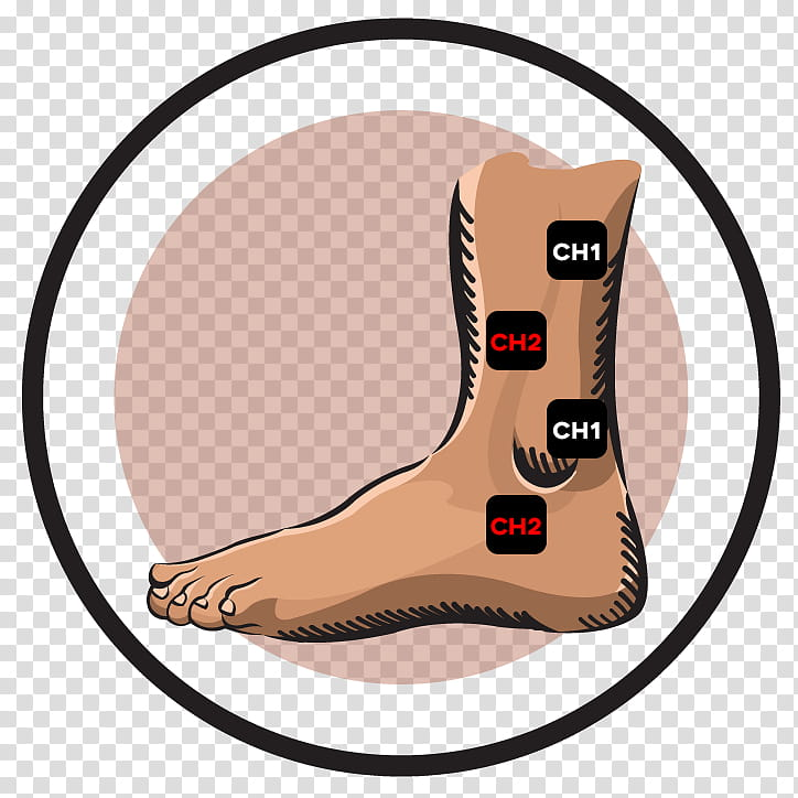 Ankle Footwear, Transcutaneous Electrical Nerve Stimulation.