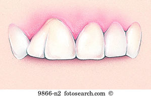 Tooth anomaly Stock Illustrations. 12 tooth anomaly clip art.