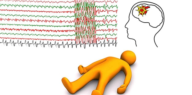 What is epilepsy? Causes, symptoms and treatment methods.