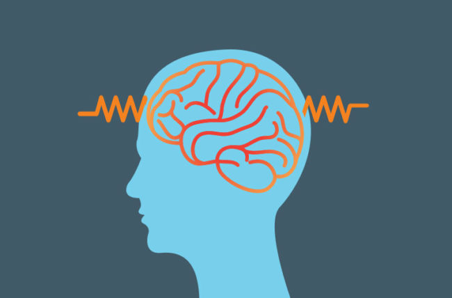 13 Common Epilepsy Myths, Debunked.