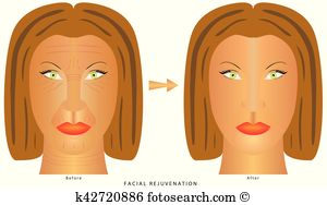 Anti wrinkle Clip Art Vector Graphics. 114 anti wrinkle EPS.