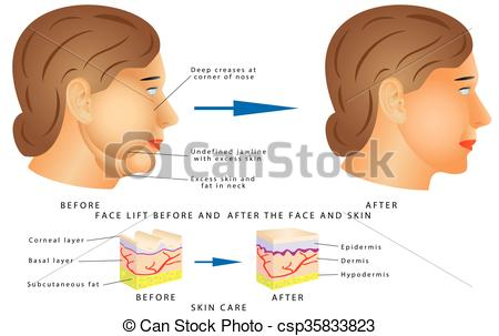 Vector Illustration of Ageing face changes. Face lift before and.