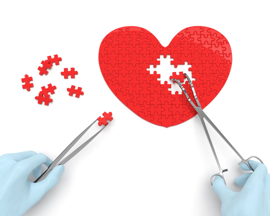 Unroofing surgery relieves debilitating symptoms of heart.