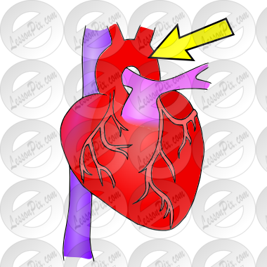 Aorta Picture for Classroom / Therapy Use.