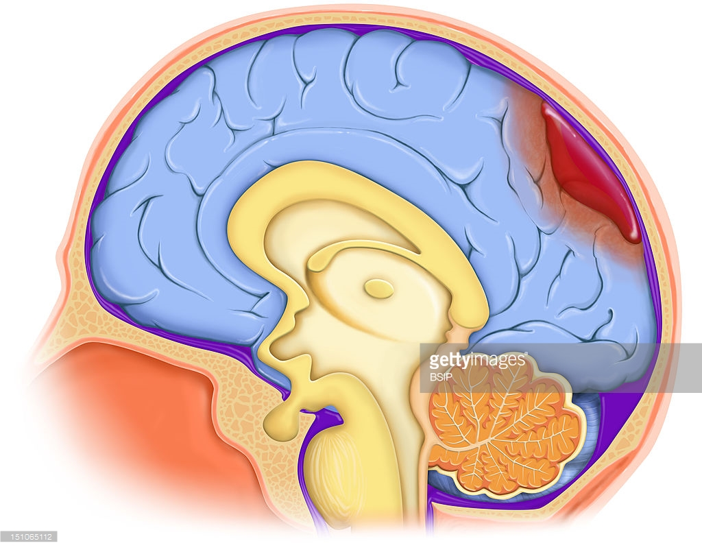 Brain Hemorrhage, Illustration Pictures.