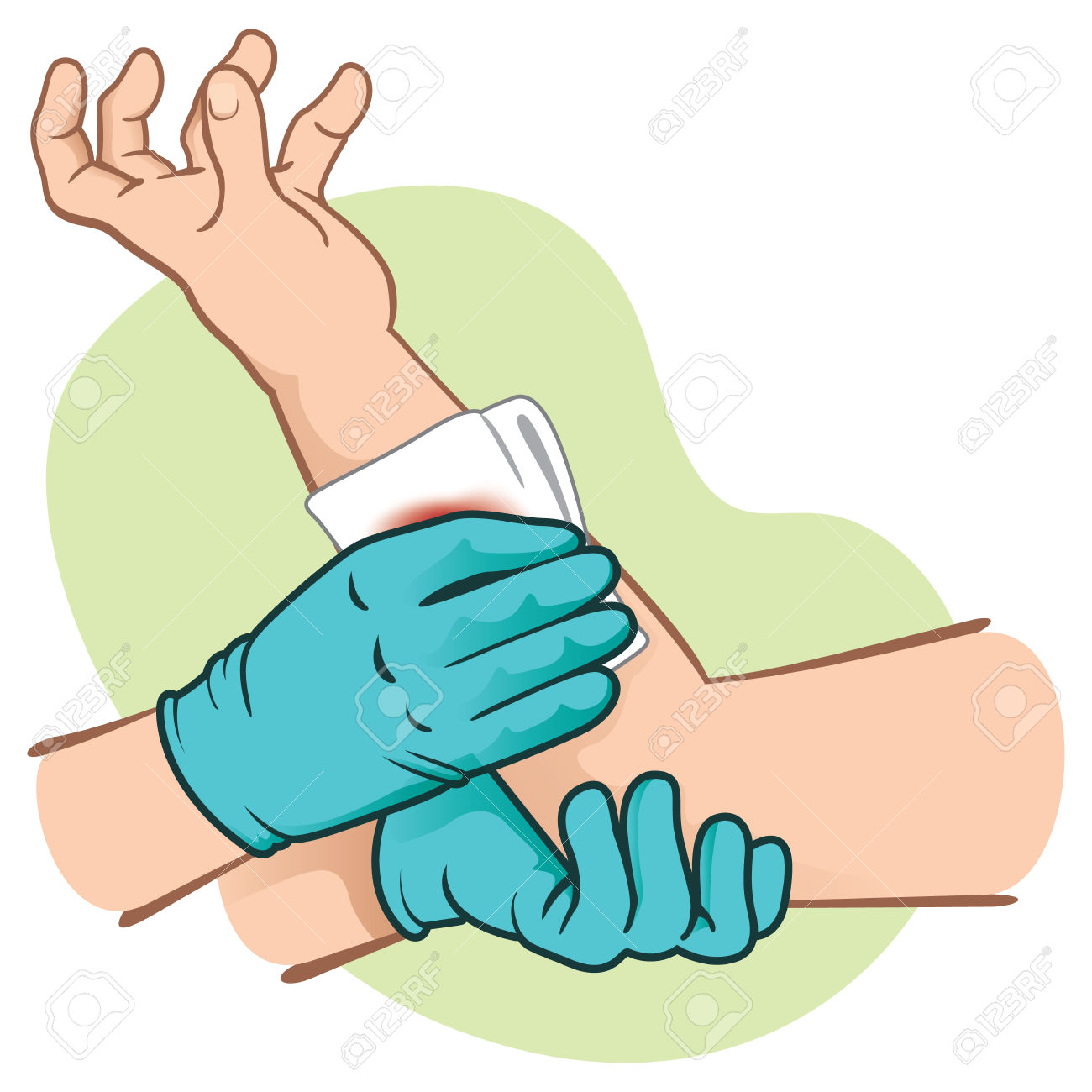 Bleeding First Aid Clipart.