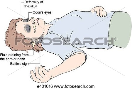 Head and arm cuffs clipart.