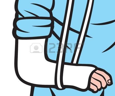 Arm Cast Clipart.