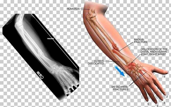 Thumb Arm Sprain X.