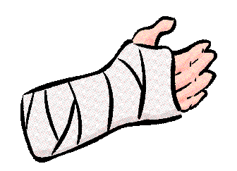 Clipart arm cast Transparent pictures on F.