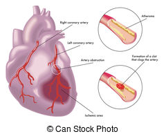 Arrhythmia Clip Art and Stock Illustrations. 317 Arrhythmia EPS.