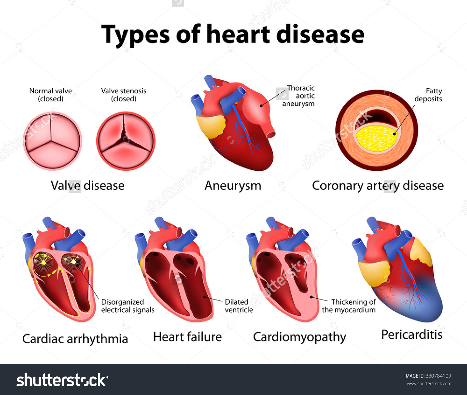 Heart Arrhythmia Clip Art.
