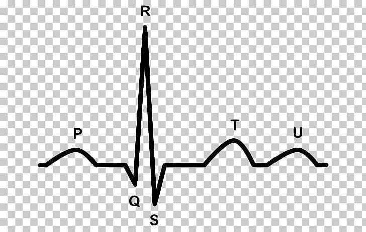 Electrocardiography Heart arrhythmia Cardiology.