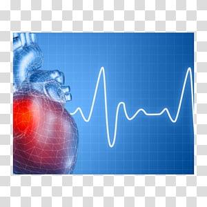 Heart arrhythmia Tachycardia VO2 max Disease Heart failure.