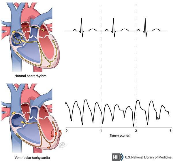 Catecholaminergic polymorphic ventricular tachycardia.