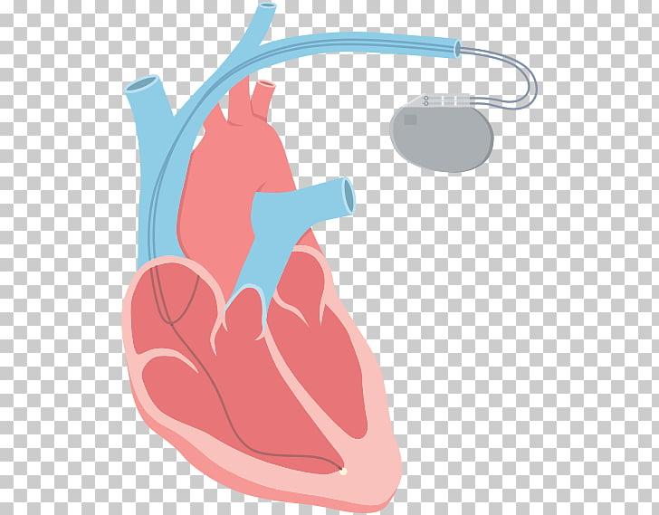 Heart arrhythmia Tachycardia Catheter ablation, heart beat.