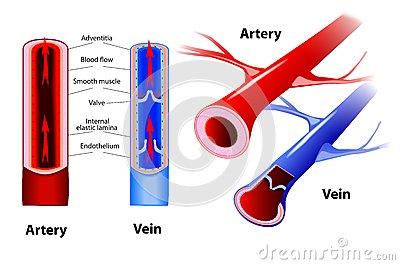 Arteriosclerosis Stock Illustrations.