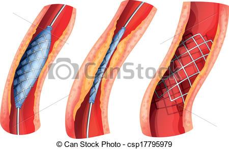 Blocked Artery Clip Art.