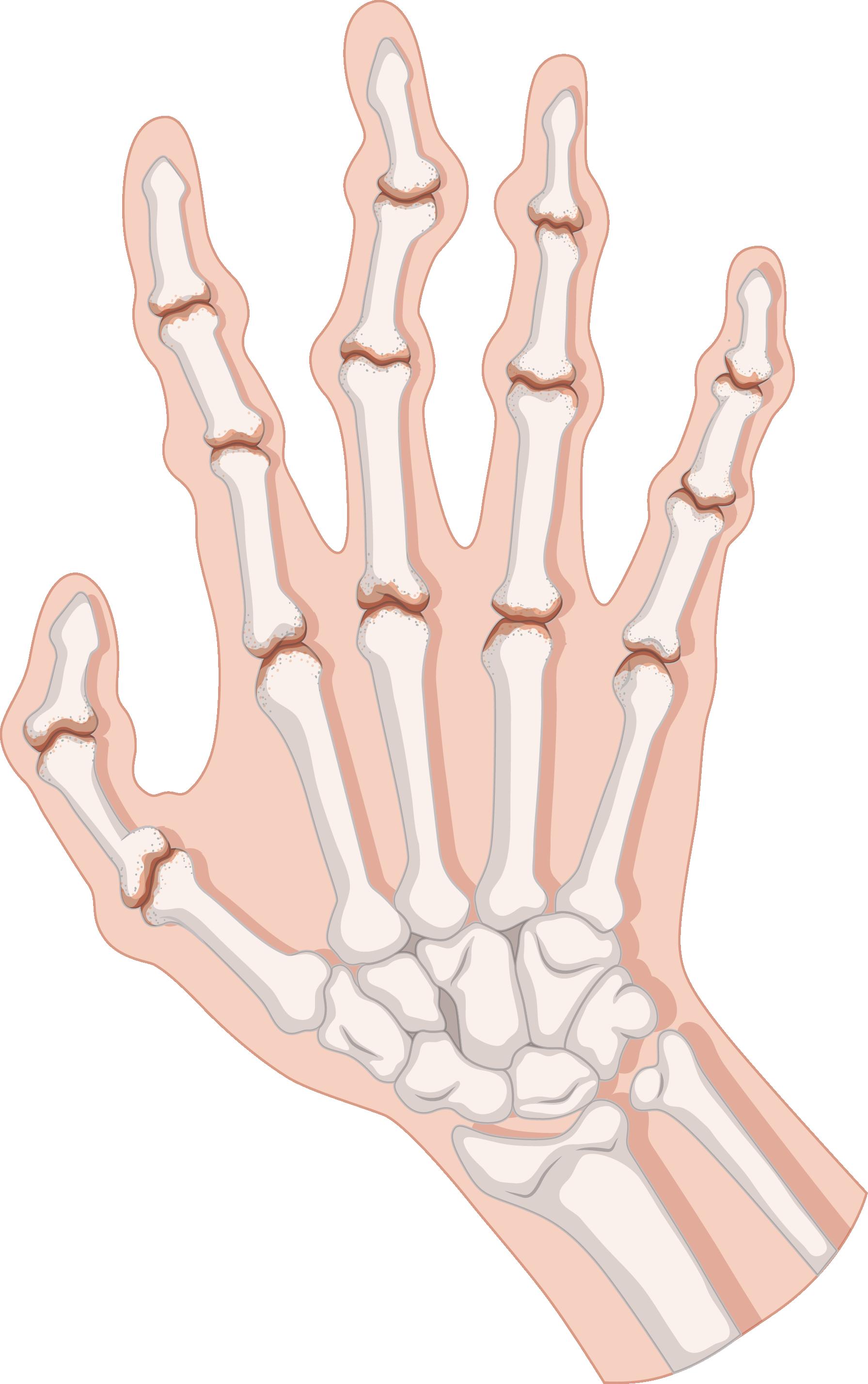 Hurt clipart arthritis, Hurt arthritis Transparent FREE for.