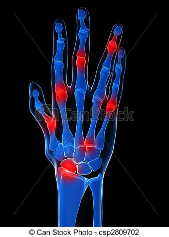 Arthritis Illustrations, Graphics & Clipart.