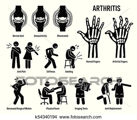 Arthritis, Joint Pain, and Joint Disease Icons. Clipart.