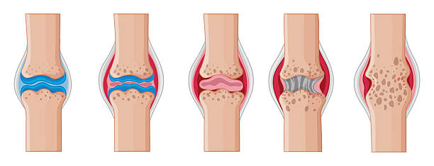Best Rheumatoid Arthritis Illustrations, Royalty.