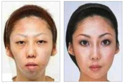 The Asian Face and the Rise of Cosmetic Surgery.