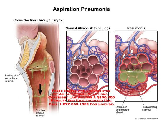 Collection of free Aspirating clipart pneumonia patient.