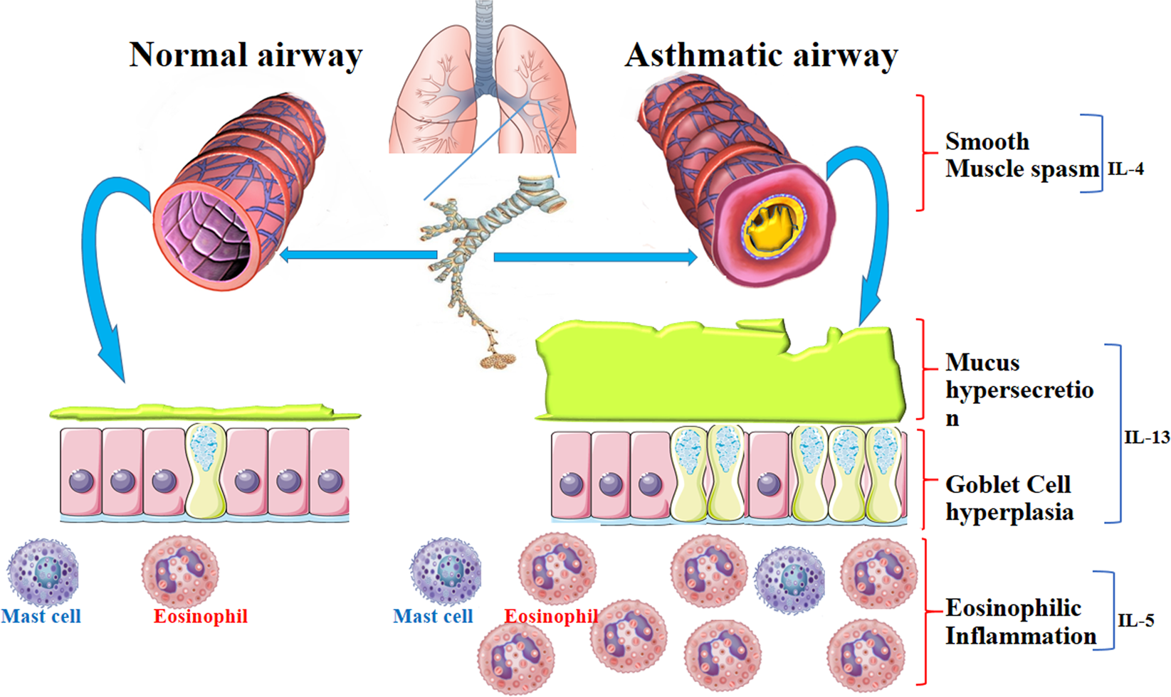 Targeting cell signaling in allergic asthma.