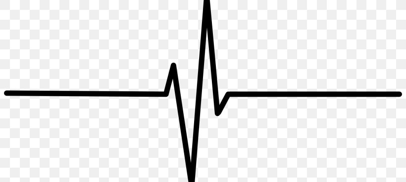 Heart Rate Electrocardiography Pulse Clip Art, PNG.