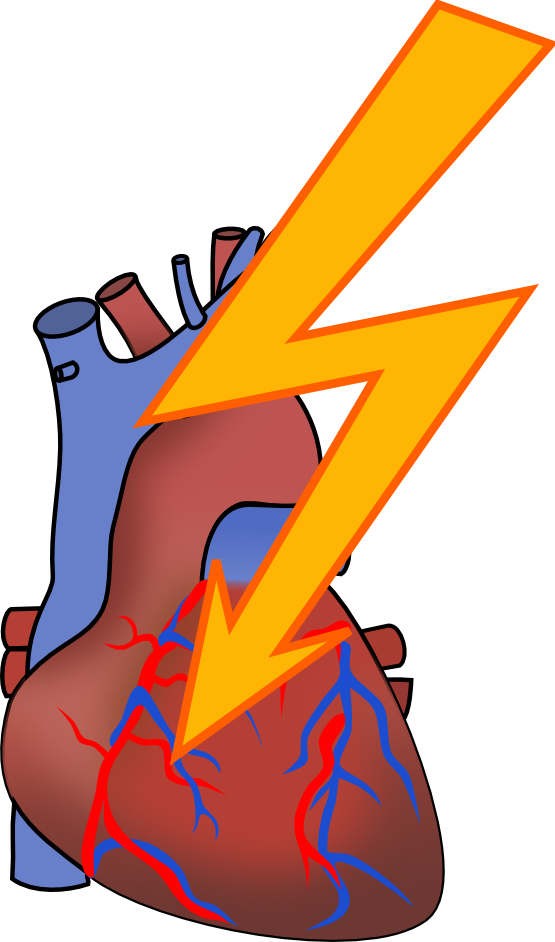 Heart attack clipart.