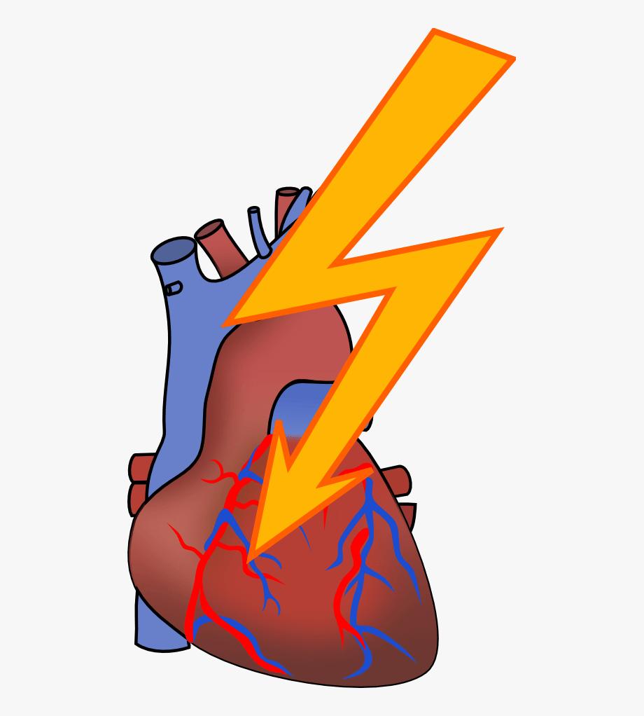 Heart Attack Clip Art , Transparent Cartoon, Free Cliparts.