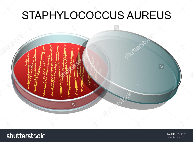 Staphylococcus Aureus Clip Art.