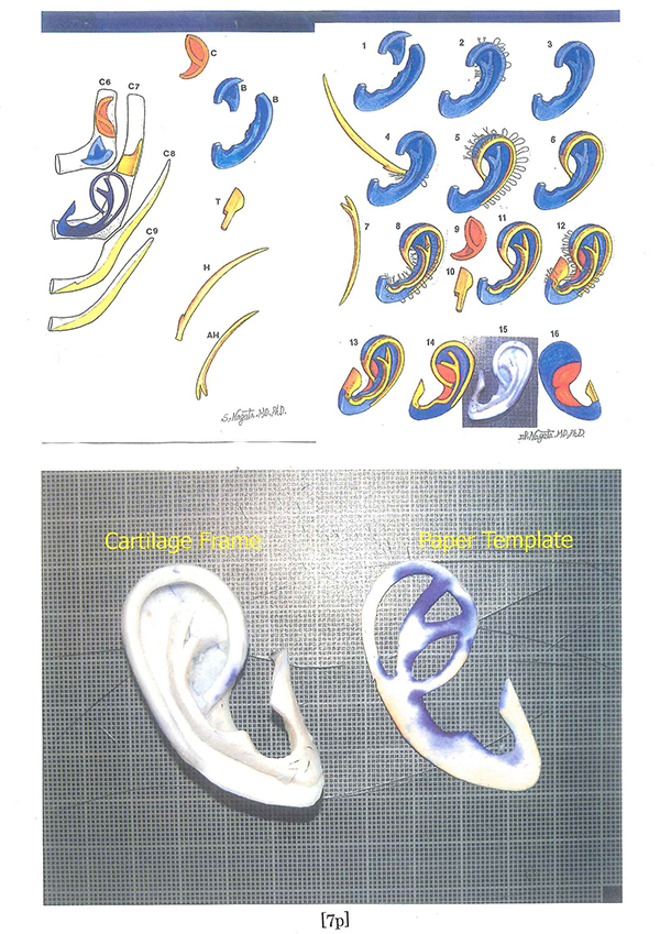 Accuracy evaluation on proportions of the reconstructed auricle.