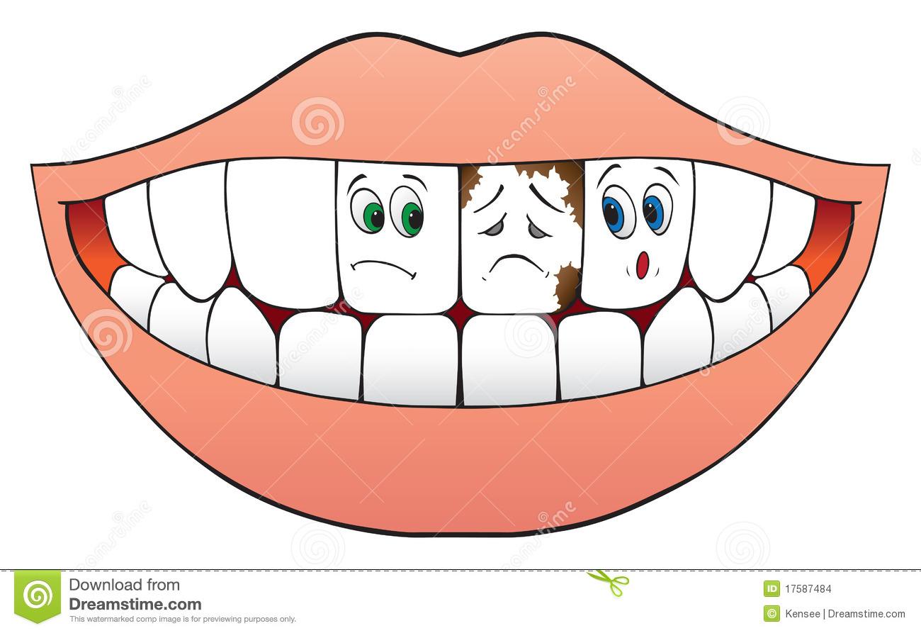 Bad Teeth Clipart.