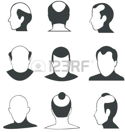 2,738 Bald Head Cliparts, Stock Vector And Royalty Free Bald Head.