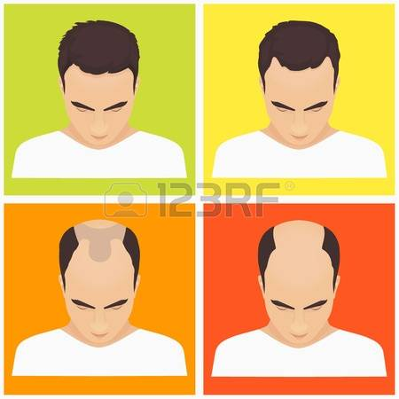 547 Baldness Stock Vector Illustration And Royalty Free Baldness.