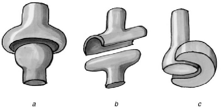 Schematic of three synovial joints a Ball and socket joint b.