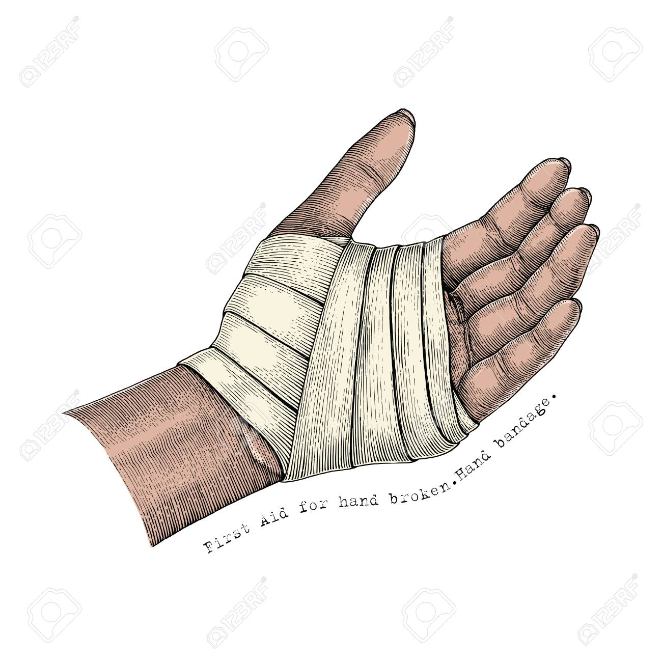 First Aid for hand broken.Hand bandage.Hand illustration vintage...