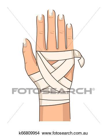 Bandage hand bandaging wrist injury first aid Clipart.