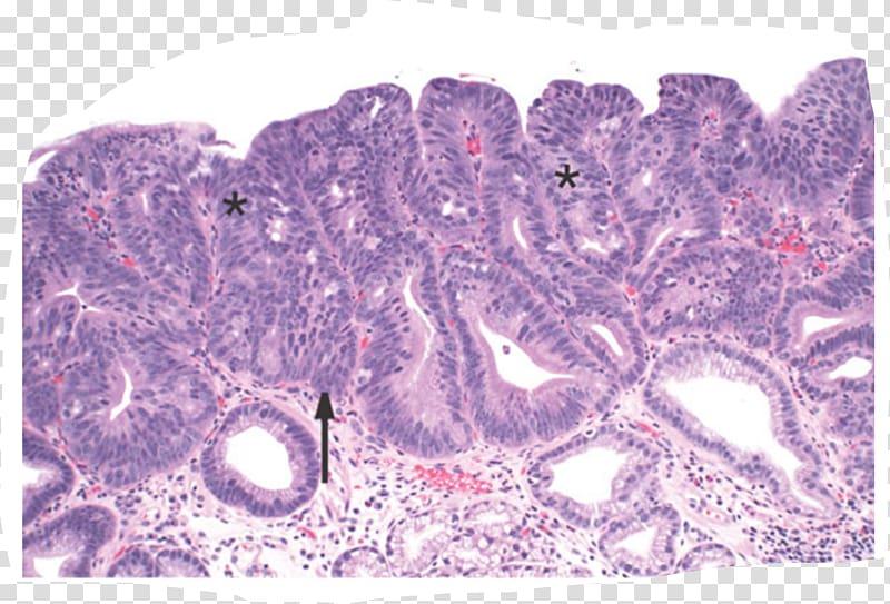 Barrett\'s esophagus Intestinal metaplasia Epithelium.