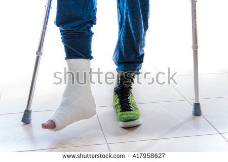 Leg Cast Isolated Stock Images, Royalty.
