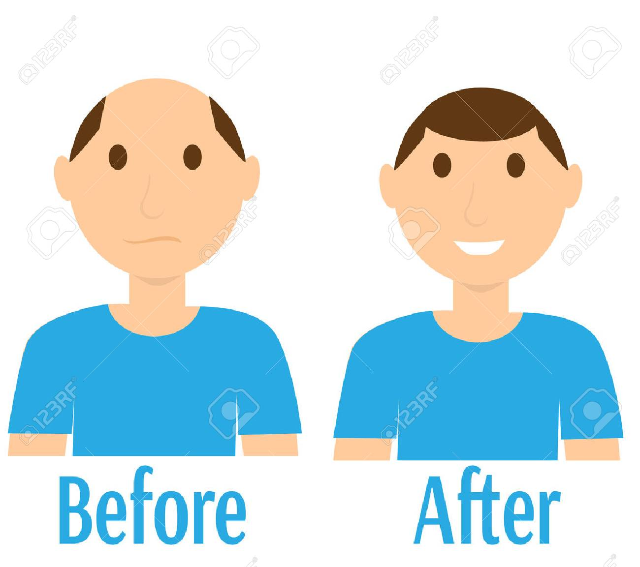Before and after hair transplantation.
