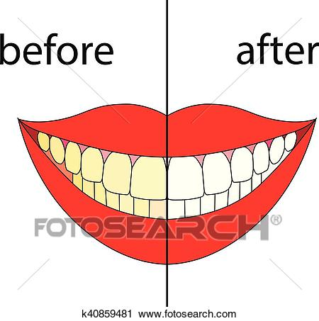 Smiling before after. Vector Clipart.