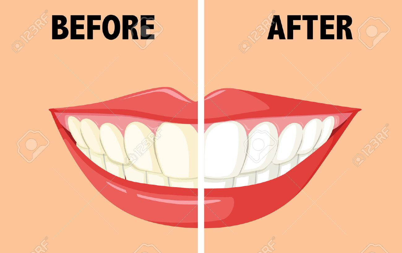 Before and after brushing teeth illustration.