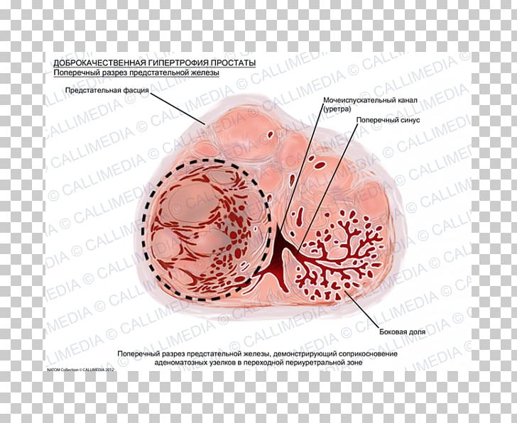 Prostate Cancer Benign Prostatic Hyperplasia Hypertrophy.