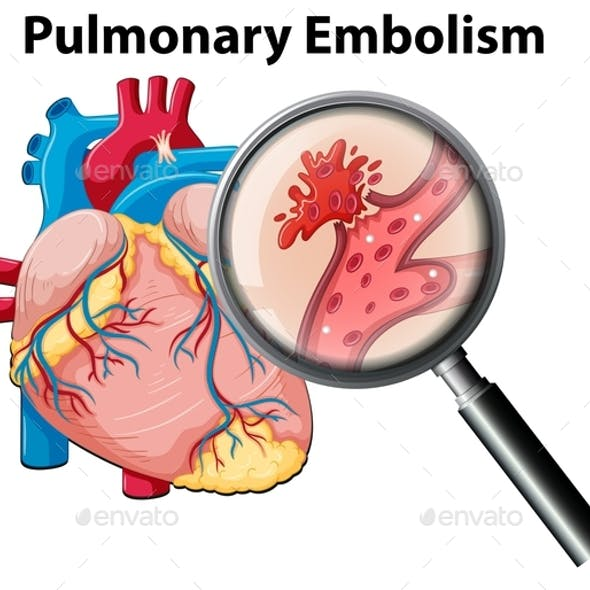 Clipart and Emphysema Graphics, Designs & Template.