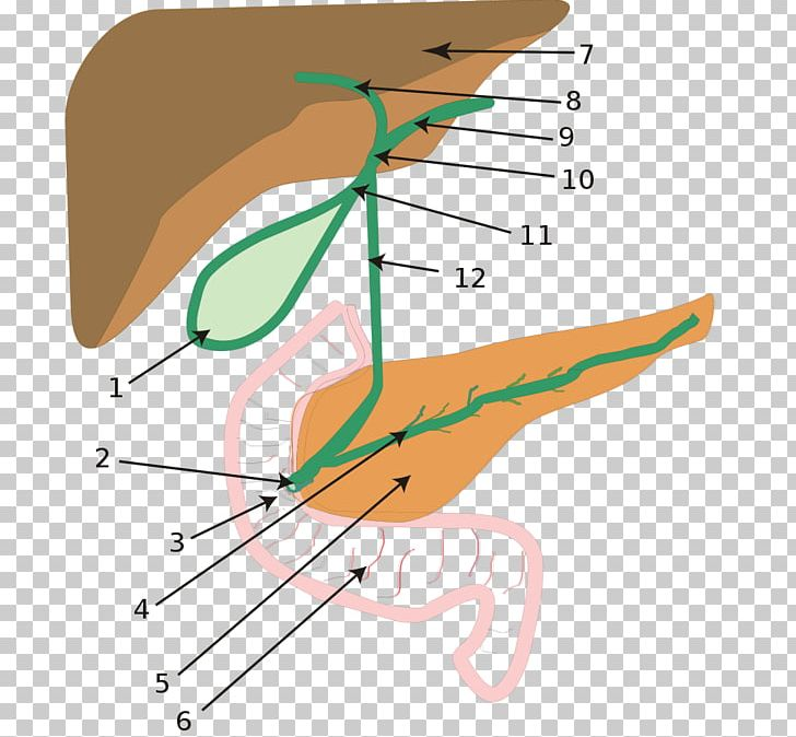 Biliary Atresia Biliary Tract Intrahepatic Bile Ducts PNG.
