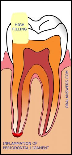 Pain Caused By a High Filling.