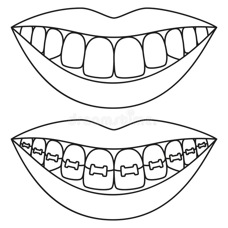 Black White Teeth Stock Illustrations.